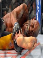 Anderson Silva UFC 168 Broken Leg Picture