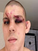 Joe Lauzon After Hard Match