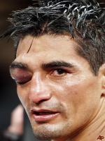 Rik Morales Injured