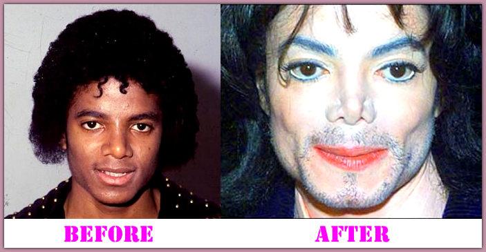 Michael Jackson after plastic surgery | Michael Jackson ...