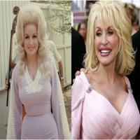 10 Celebrities with Worse Plastic Surgery Effects