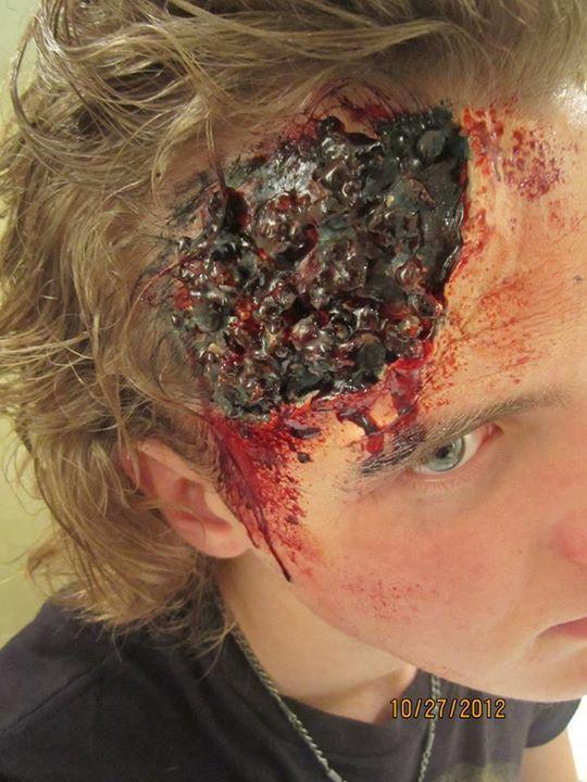 Revealed skull  Bruised eye