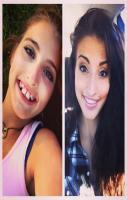 Three Years and Three Jaw Surgeries later