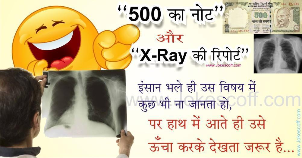 X Ray In india onlu for 500 Rupees