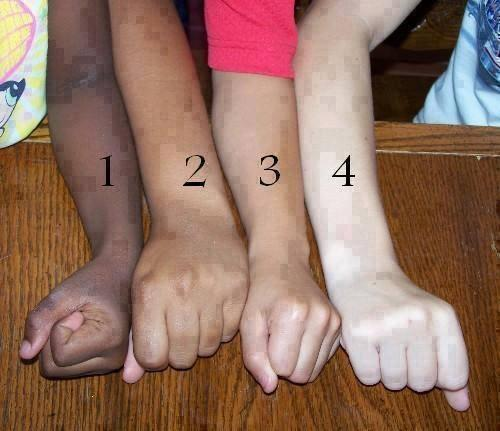 Which Is Your Skin Colour..